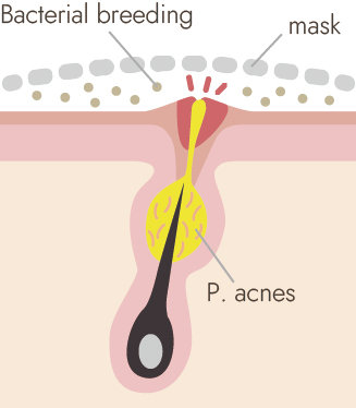 skin with P.acnes